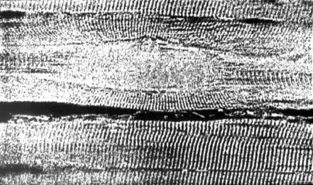 Trigger point kot bula med misicnimi vlakni