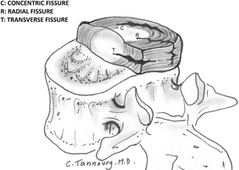 koncentrične radialne in transverzalne fisure