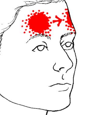 Rdeče področje za glavobol na čelu