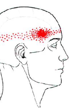 Rdeče področje za glavobol v sencah