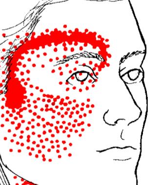 Rdeče področje za glavobol za očmi