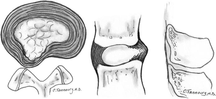 Izbočenje tkiva ploščice med vretenci