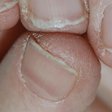 odkruseni krhki lomljivi nohti