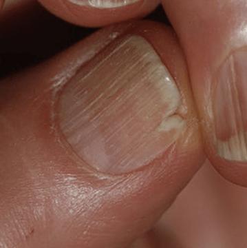popokani krhki lomljivi nohti