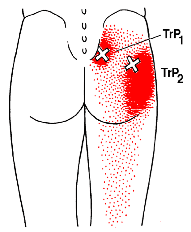 najmocnejsa je bolecina v riti ki izzareva po nogi za piriformis sindrom